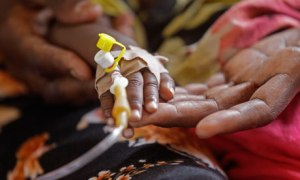 The hand of a sick child is held by it's mother at a clinic Kenya